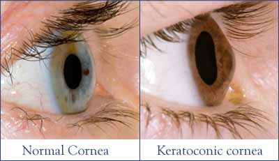 photo of keratoconic cornea