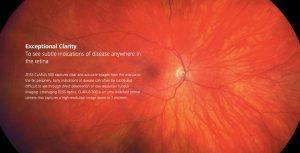 HD Wide Field Retinal Photography