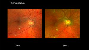 HD Wide Field Retinal Photography - Clarus HD resolution vs competitor