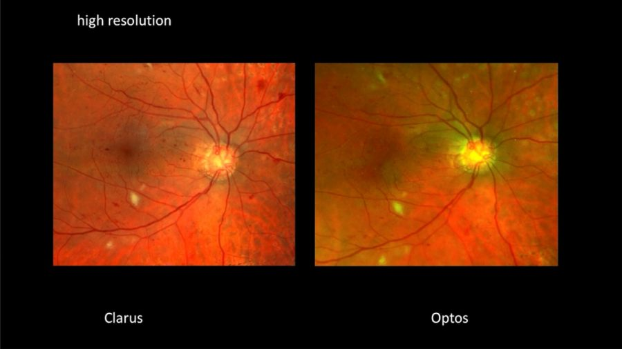 Clarus HD resolution vs competitor
