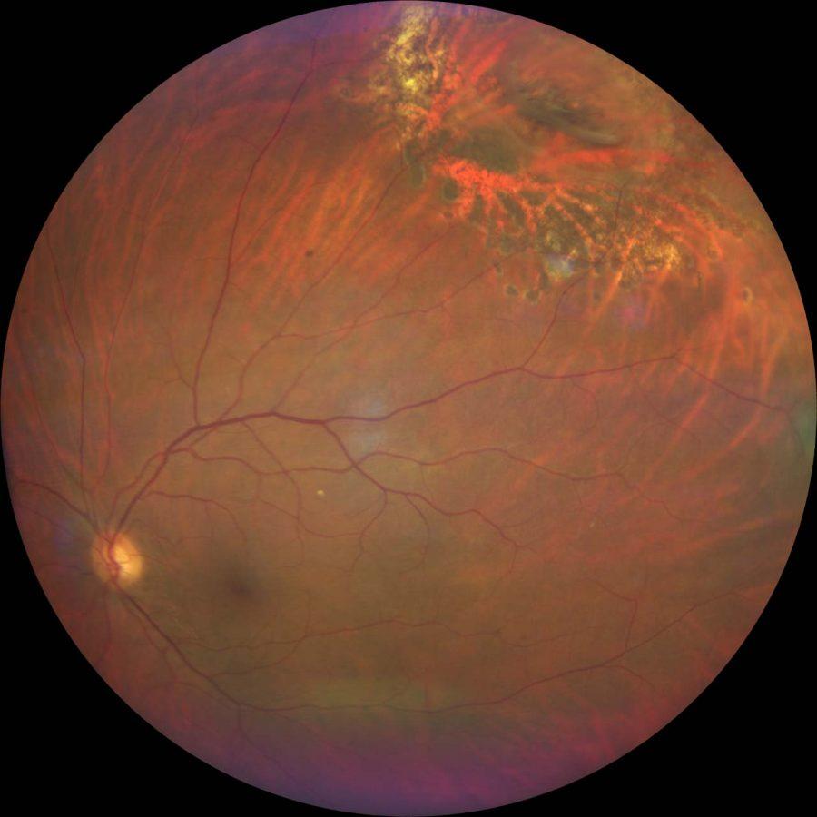 HD Retinal Imaging Optometry Newcastle
