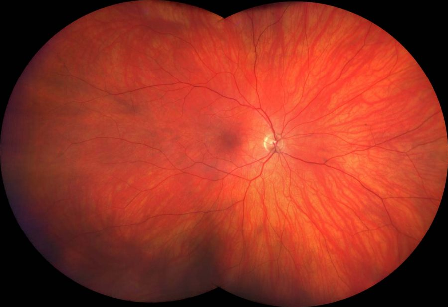 Normal healthy retina, Optometry Newcastle