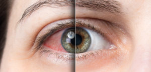 An eye that is half dry, half moist. Dry Eye Treatment Newcastle