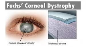 A photo of a cloudy eye and the layers, fuchs dystrophy treatment newcastle