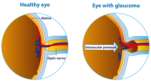 healthy eye and an eye with glaucoma