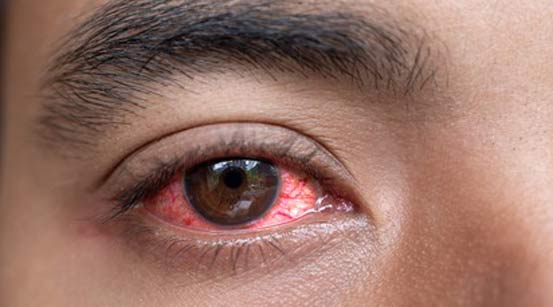 red eye clinic in Newcastle