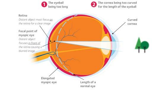 Myopia control at the myopia clinic Newcastle