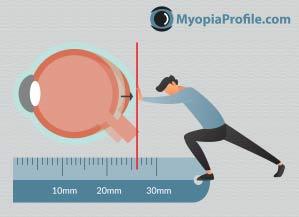 myopia control and monitoring progression of myopia